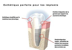 Chirurgie pré-implantaire à Neuilly sur Seine