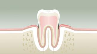 Parodontologie à Neuilly sur Seine