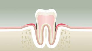 Parodontologie & Hygiène à Neuilly sur Seine