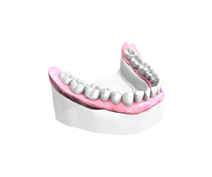 Remplacer toutes les dents absentes ou abîmées - Dentiste Neuilly sur Seine
